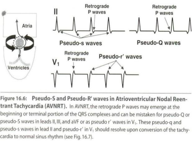 Paroxysmal Supraventricular Tachycardia Psvt 발작성 심실상성 빈맥 발작 심실위 빠른맥 Avnrt Av Nodal Reentry 네이버 블로그